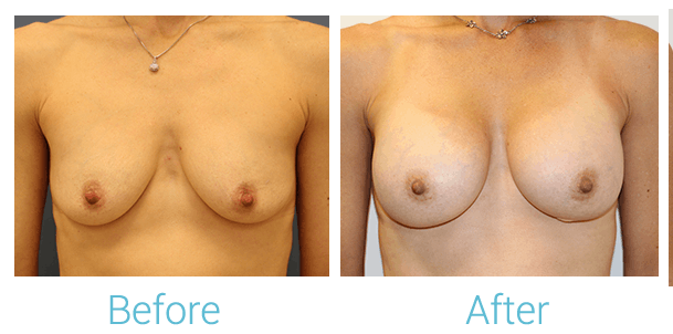 Breast Augmentation Gallery - Patient 58151854 - Image 1