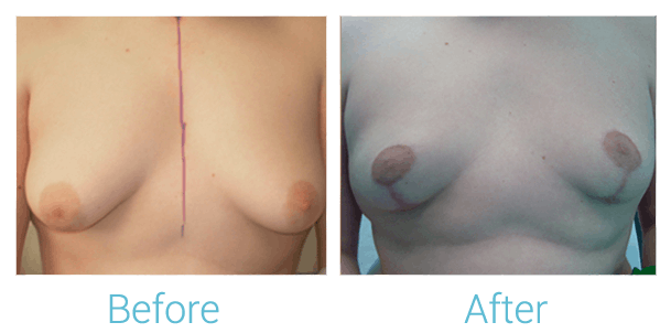 Breast Lift Gallery - Patient 58151867 - Image 1