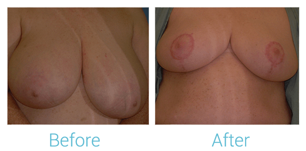 Breast Lift Gallery - Patient 58151868 - Image 1