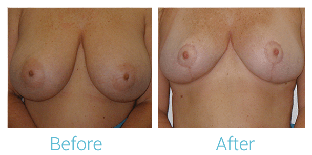 Breast Lift Gallery - Patient 58151869 - Image 1