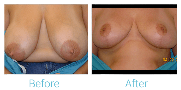 Breast Lift Gallery - Patient 58151870 - Image 1