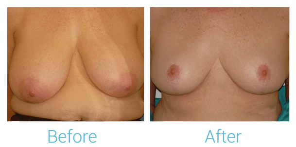 Breast Lift Gallery - Patient 58151871 - Image 1