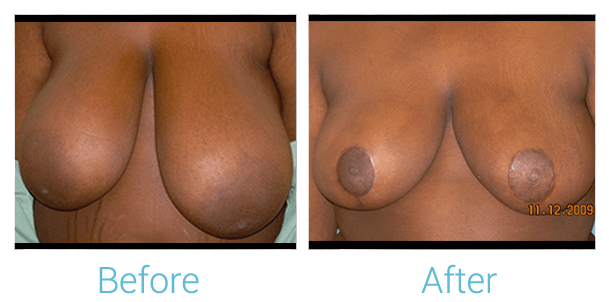 Breast Lift Gallery - Patient 58151872 - Image 1