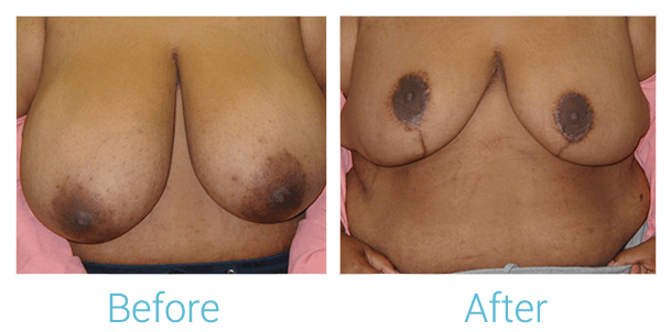 Breast Lift Gallery - Patient 58151873 - Image 1