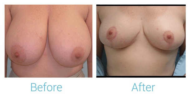 Breast Lift Gallery - Patient 58151874 - Image 1