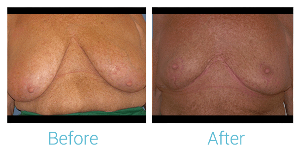 Breast Lift Gallery - Patient 58151875 - Image 1