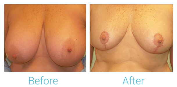 Breast Lift Gallery - Patient 58151876 - Image 1