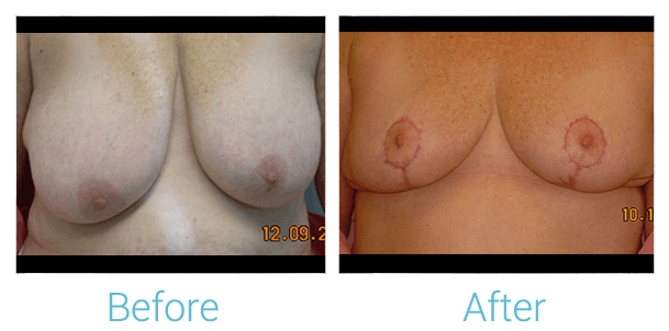 Breast Lift Gallery - Patient 58151877 - Image 1