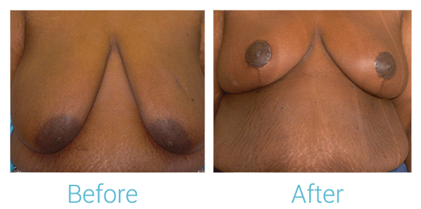 Breast Lift Gallery - Patient 58151878 - Image 1