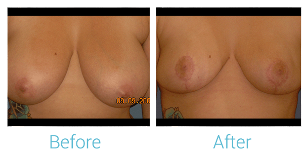 Breast Lift Gallery - Patient 58151879 - Image 1