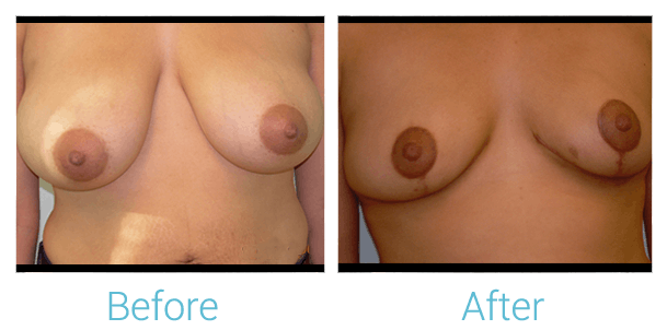 Breast Lift Gallery - Patient 58151880 - Image 1