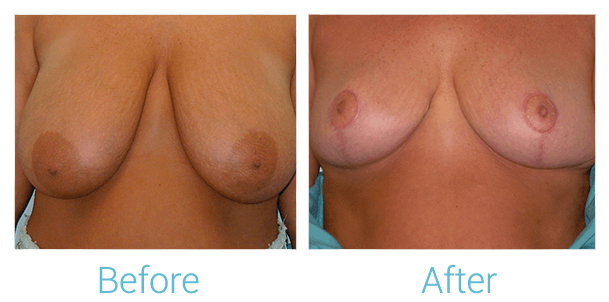 Breast Lift Gallery - Patient 58151881 - Image 1