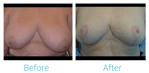 Breast Lift Gallery - Patient 58151882 - Image 1
