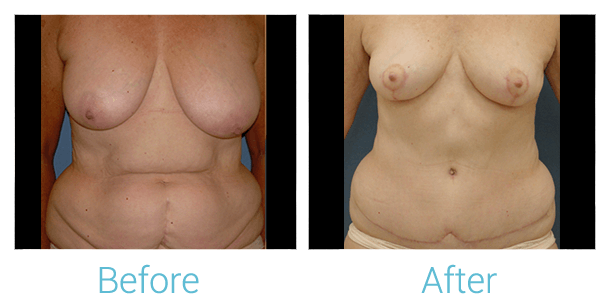 Breast Lift Gallery - Patient 58151883 - Image 1