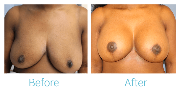Breast Lift Gallery - Patient 58151884 - Image 1