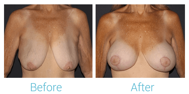 Breast Lift Gallery - Patient 58151885 - Image 1