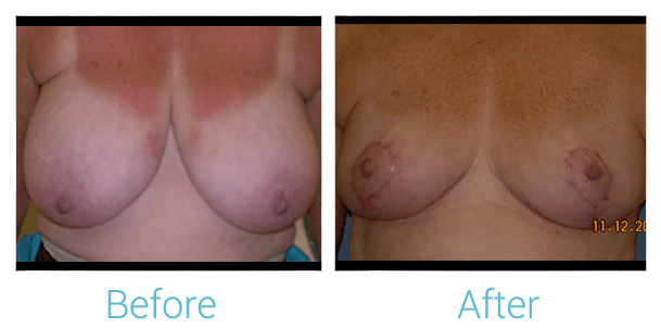 Breast Reduction Gallery - Patient 58151902 - Image 1