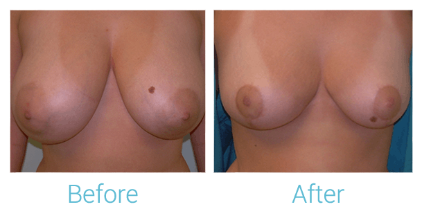 Breast Reduction Gallery - Patient 58151903 - Image 1