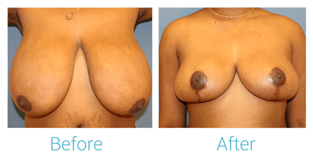 Breast Reduction Gallery - Patient 58151916 - Image 1