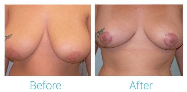 Breast Reduction Gallery - Patient 58151909 - Image 1