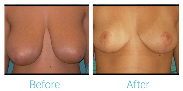 Breast Reduction Gallery - Patient 58151915 - Image 1