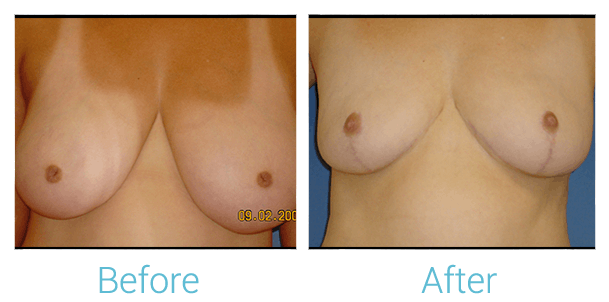 Breast Reduction Gallery - Patient 58151910 - Image 1