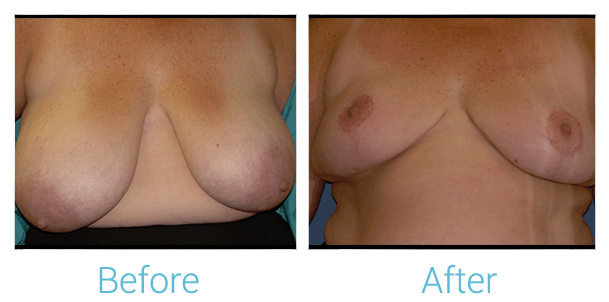 Breast Reduction Gallery - Patient 58151911 - Image 1