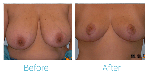 Breast Reduction Gallery - Patient 58151912 - Image 1