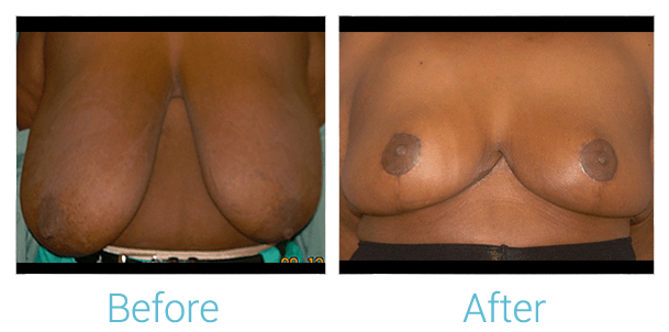 Breast Reduction Gallery - Patient 58151913 - Image 1
