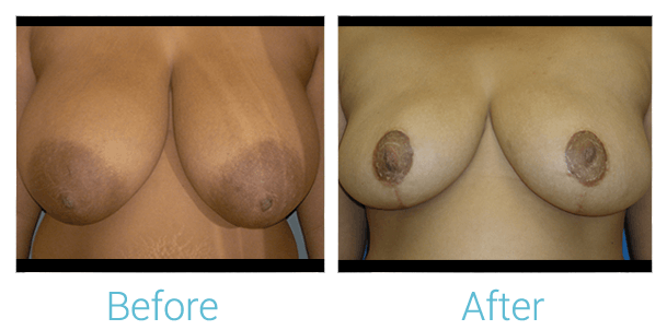 Breast Reduction Gallery - Patient 58151914 - Image 1