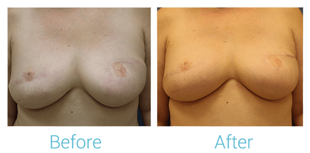 Breast Reconstruction Gallery - Patient 58151922 - Image 1