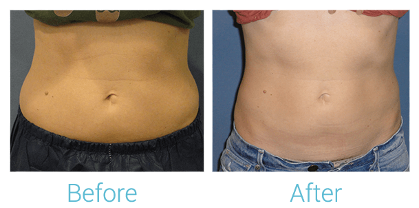 CoolSculpting Gallery - Patient 58151951 - Image 1