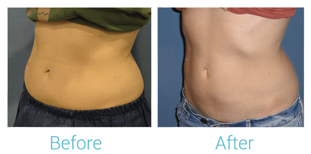 CoolSculpting Gallery - Patient 58151951 - Image 2