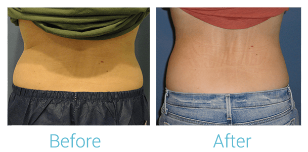 CoolSculpting Gallery - Patient 58151951 - Image 3