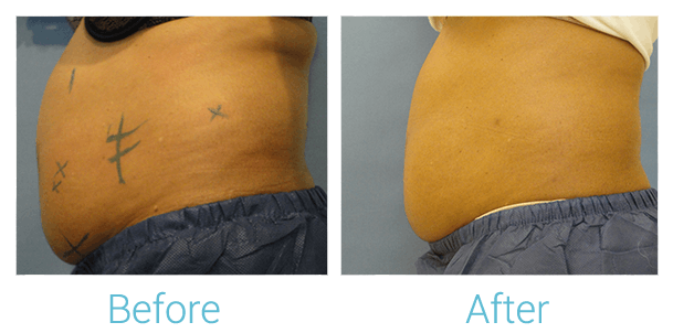 CoolSculpting Gallery - Patient 58151952 - Image 2