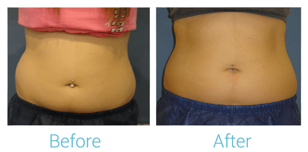 CoolSculpting Gallery - Patient 58151953 - Image 1