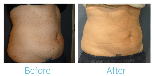 CoolSculpting Gallery - Patient 58151954 - Image 1