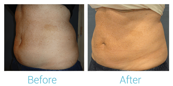 CoolSculpting Gallery - Patient 58151954 - Image 2