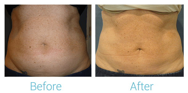 CoolSculpting Gallery - Patient 58151954 - Image 3
