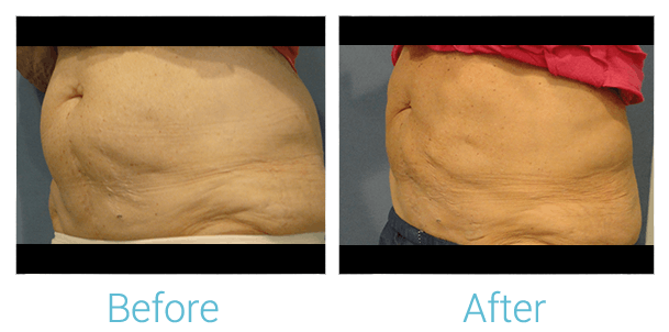 CoolSculpting Gallery - Patient 58151955 - Image 1