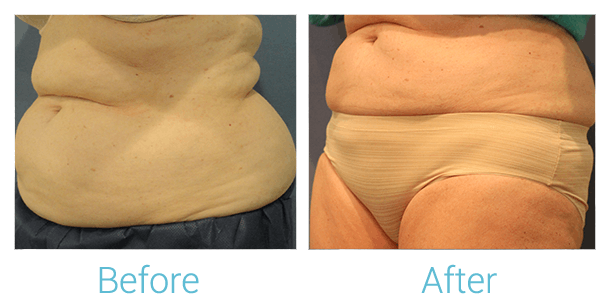 CoolSculpting Gallery - Patient 58151956 - Image 1