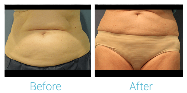 CoolSculpting Gallery - Patient 58151956 - Image 2