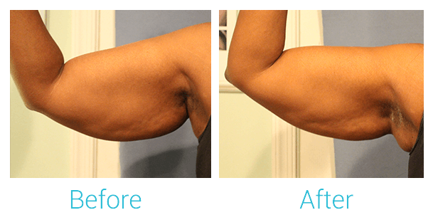 CoolSculpting Gallery - Patient 58151958 - Image 1