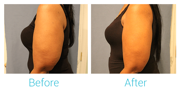 CoolSculpting Gallery - Patient 58151958 - Image 2