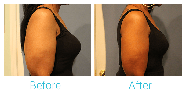 CoolSculpting Gallery - Patient 58151958 - Image 3