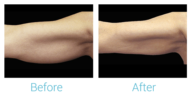 CoolSculpting Gallery - Patient 58151959 - Image 1