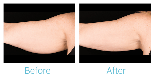 CoolSculpting Gallery - Patient 58151960 - Image 1