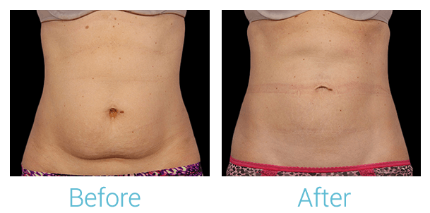 CoolSculpting Gallery - Patient 58151961 - Image 1