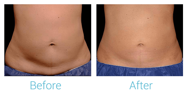 CoolSculpting Gallery - Patient 58151962 - Image 1