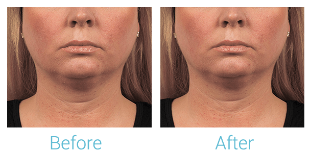 CoolSculpting Gallery - Patient 58151963 - Image 1